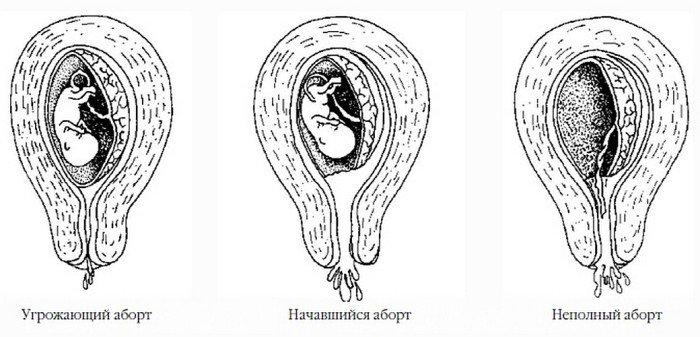 Признаки и симптомы выкидыша на ранних сроках беременности