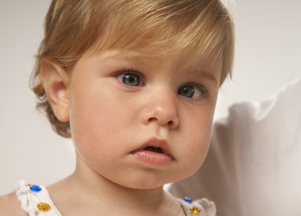 Косоглазие у ребенка. Можно ли вылечить?