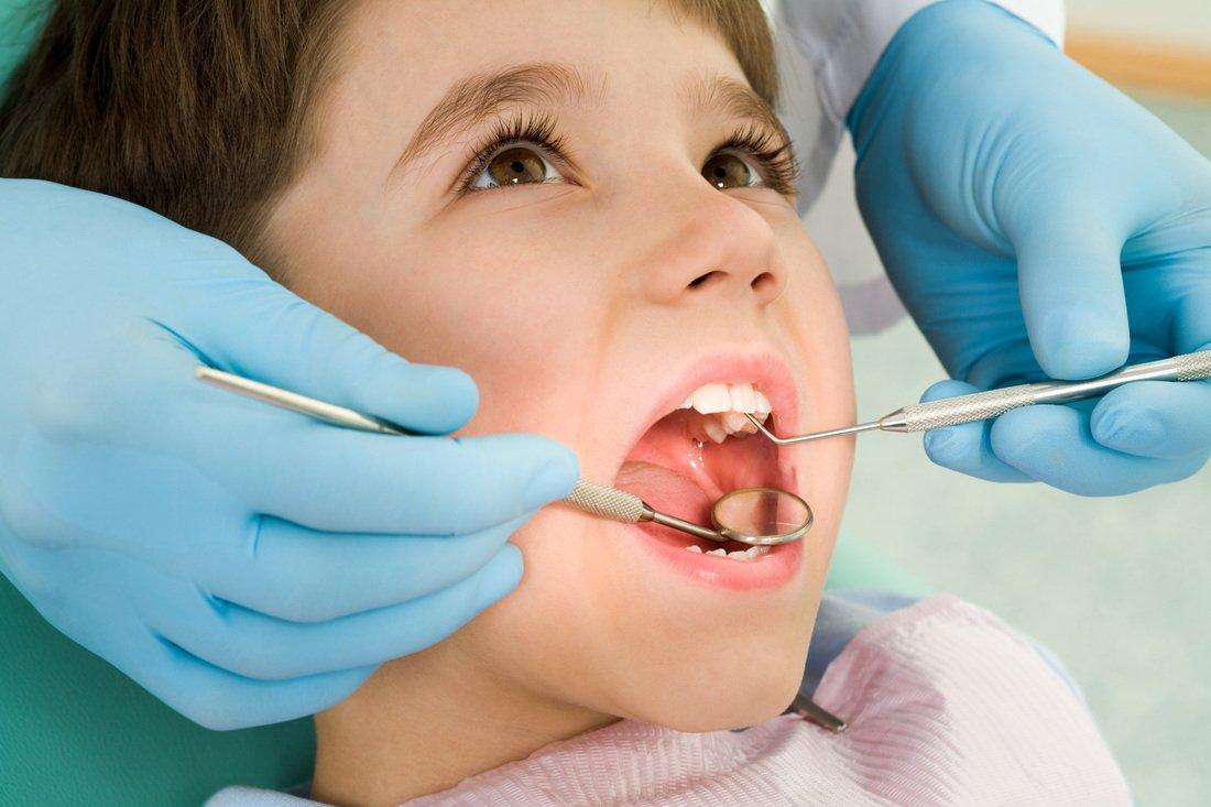 Молочные зубы: нужно ли их лечить