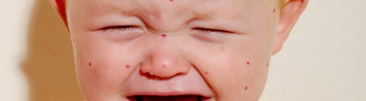 Ветрянка у детей: родителям о вирусе ветряной оспы