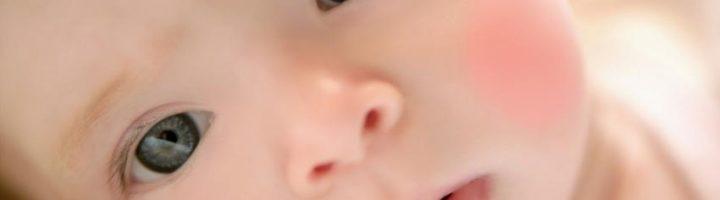 Диатез у ребенка.
