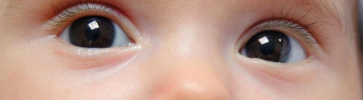 Красные глаза у ребенка. Не конъюнктивит ли?