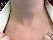 Какие болезни щитовидной железы существуют?