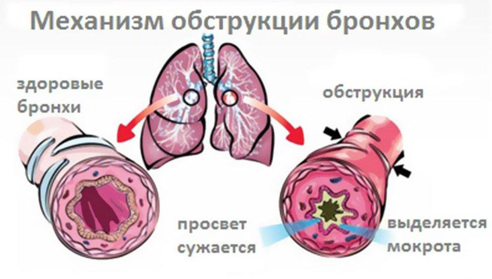 вибратор алергический обструктивн бронхит чем лечить члены трахают сочные
