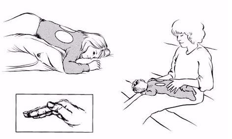 Постуральный дренаж