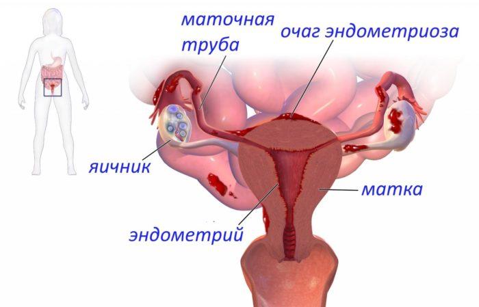 Благоприятное течение беременности при эндометриозе