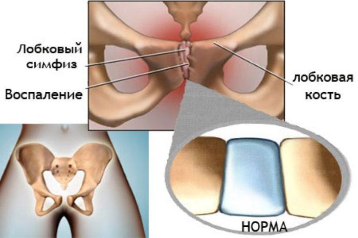 упражнения при симфизите при беременности