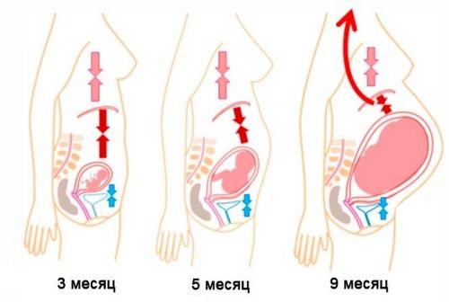 Давление растущей матки на органы пищеварения