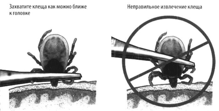 инструкция по удалению клеща