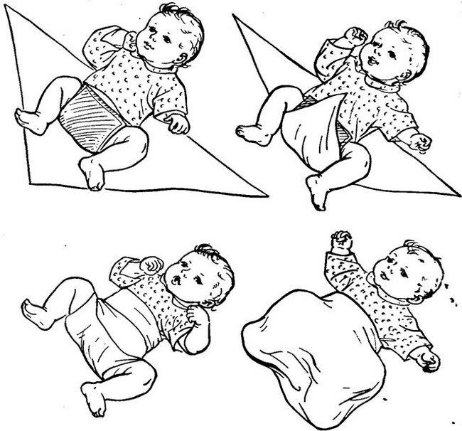Широкое пеленание показано при дисплазии тазобедренных суставов у новорождённых