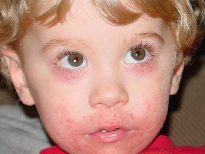 Корочки на лице у ребёнка