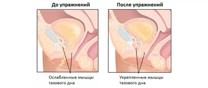 Как сокращать мышцы влагалища