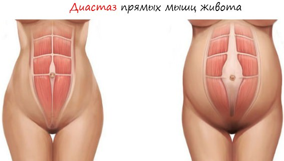 Сетчатый эндопротез при диастазе