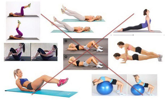 Упражнения, запрещённые при диастазе