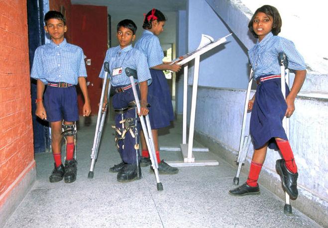Больные полиомиелитом дети