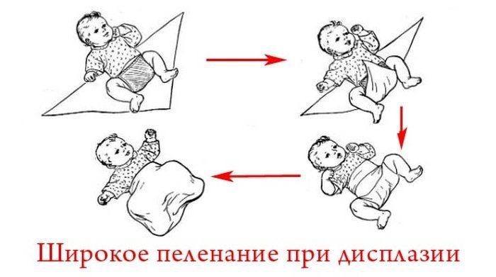 Алгоритм широкого пеленания младенца с дисплазией суставов