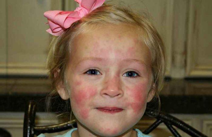 У девочки аллергическая сыпь на лице