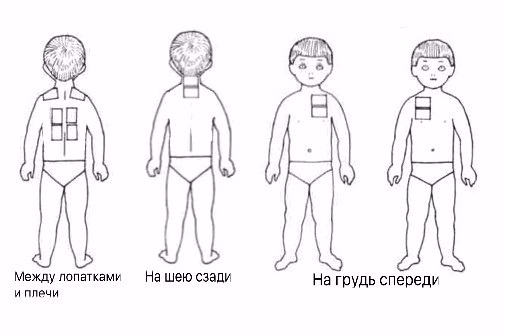 Схема для горчичников