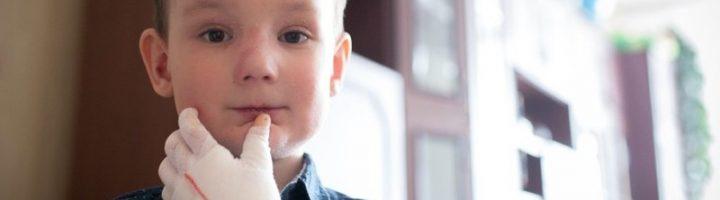 Мальчик, страдающий от буллёзного эпидермолиза