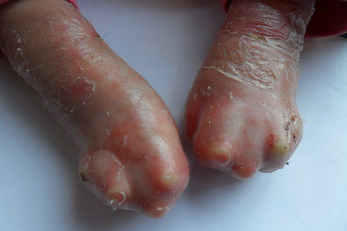 Пальцы, сросшиеся из-за болезни бабочки