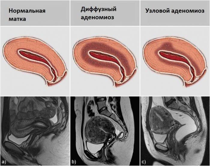 Виды аденомиоза по МРТ