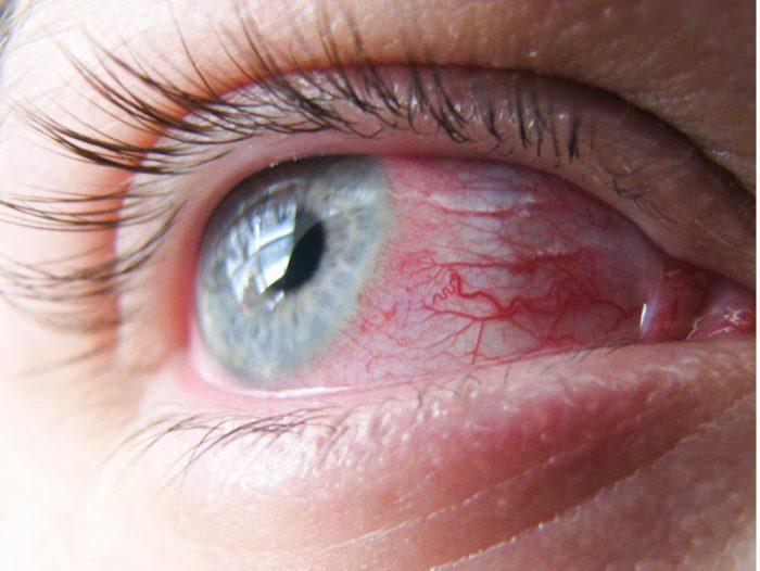 глаз с покрасневшим белком