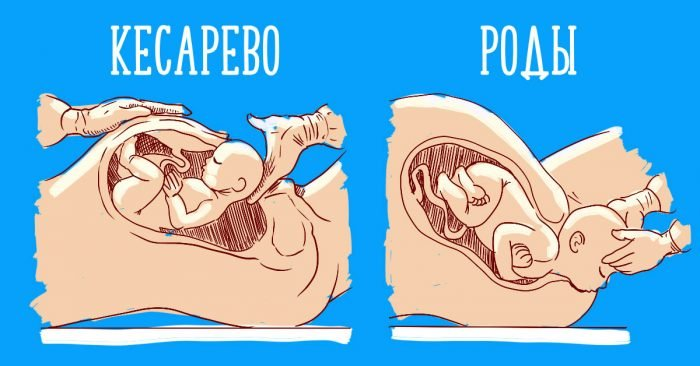 Изображение: естественные роды и кесарево сечение