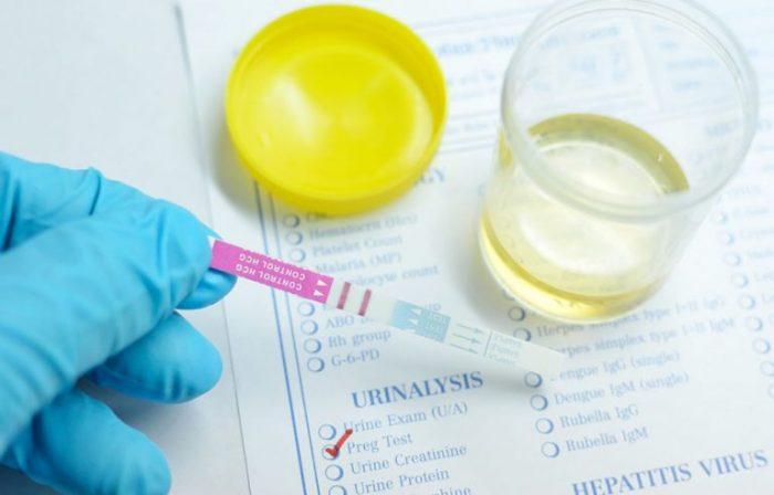 Тест на беременность и моча