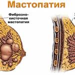 изображение здоровой груди и мастопатии