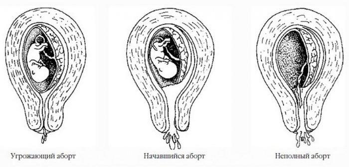 Этапы самопроизвольного аборта