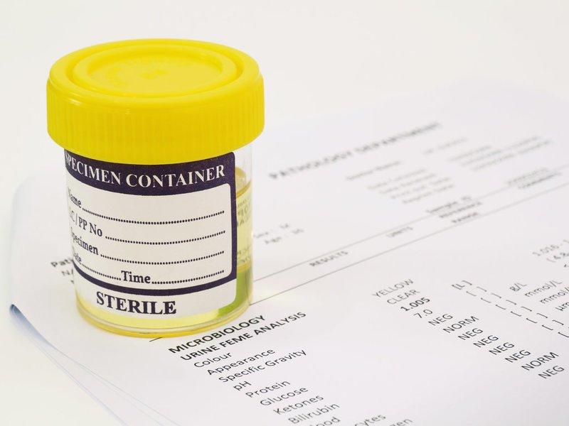 Ацетон (кетоновые тела) в моче при беременности: причины и лечение