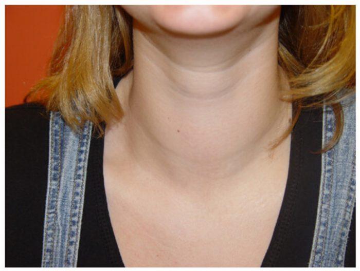 шея женщины с увеличенной щитовидной железой