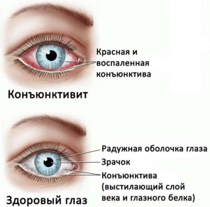 Здоровый и больной глаз