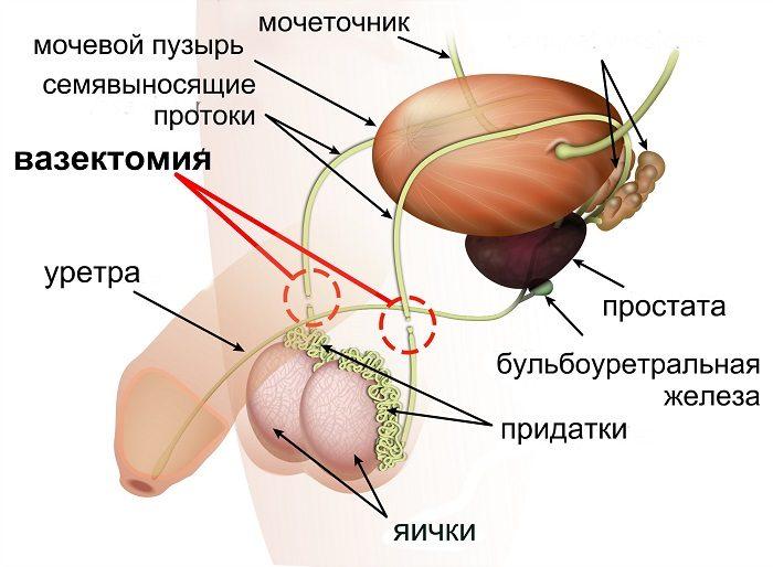 Семявыводящие протоки после вазэктомии