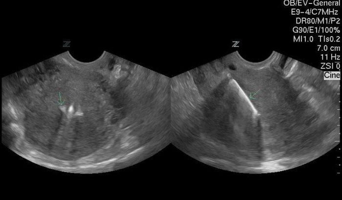 УЗИ полости матки с правильно установленной спиралью