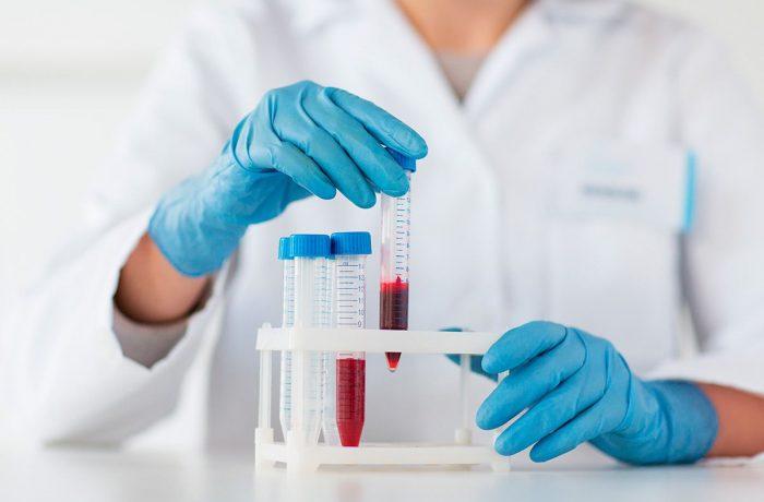 Лаборант берёт в руки пробирку с кровью