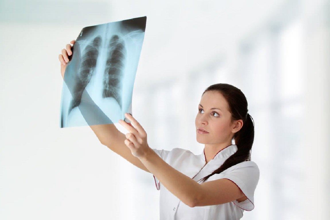 Опасна ли флюорография во время беременности?