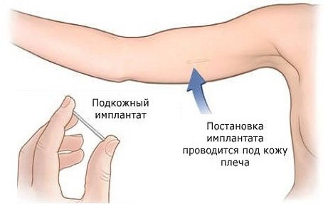 Подкожный контрацептивный имплантант (гормональный контрацептив)