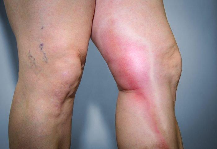 женские ноги с тромбозом