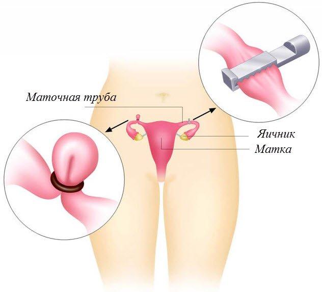 Стерилизация женская