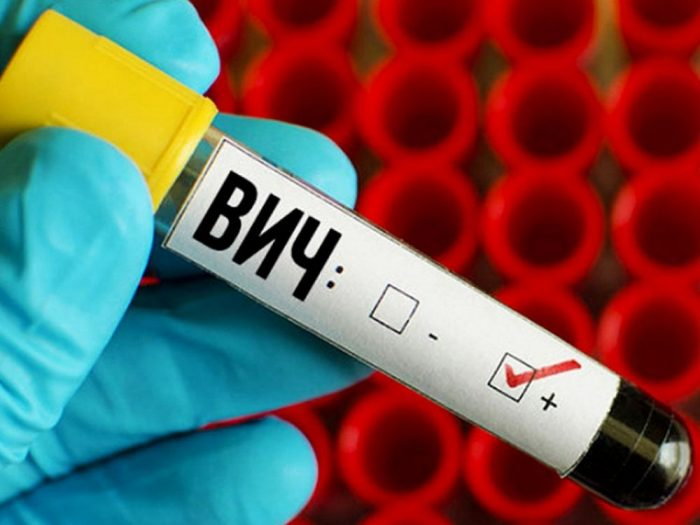 Положительный результат анализа на ВИЧ