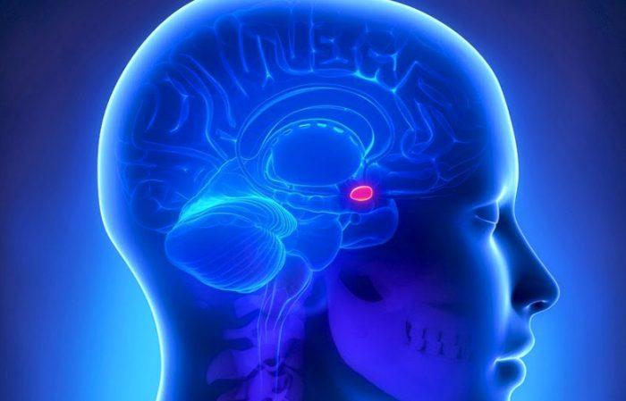 Опухоль гипофиза у женщины (обозначена розовым пятном на голубом фоне)