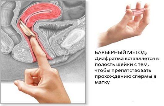 Диафрагма противозачаточная