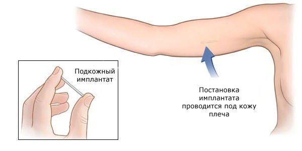 Противозачаточный подкожный имплант