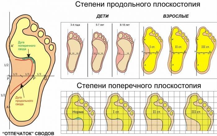 Схематическое изображение степеней детского и взрослого плоскостопия