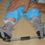 ортопедические брейсы при косолапости