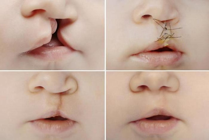 расщепление губы и нёна