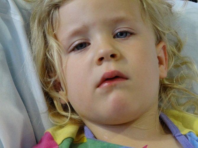 У девочки приоткрыт рот и немного удлинена нижняя челюсть