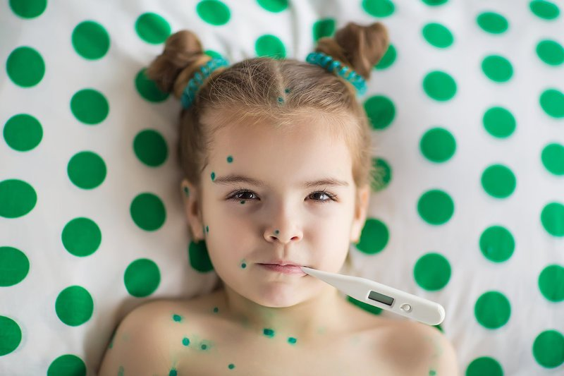 Вакцинация детей от ветряной оспы: важные вопросы и ответы