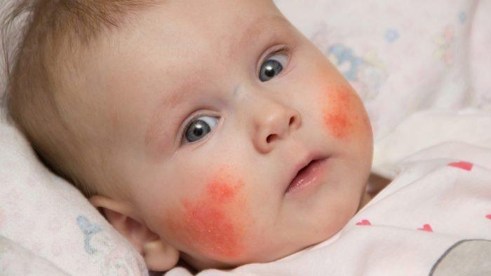 Высыпание на щёках у ребёнка
